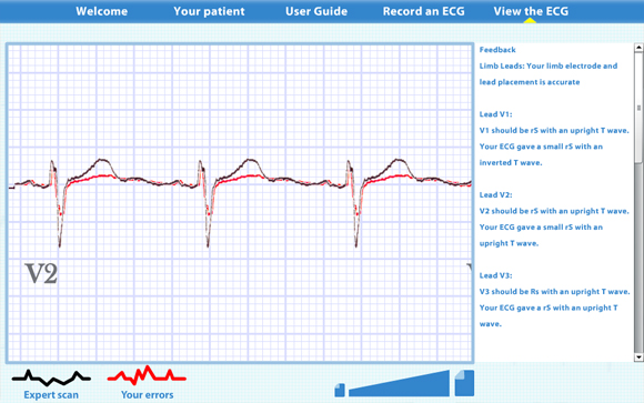 Virtual ECG: Scan result zoomed in