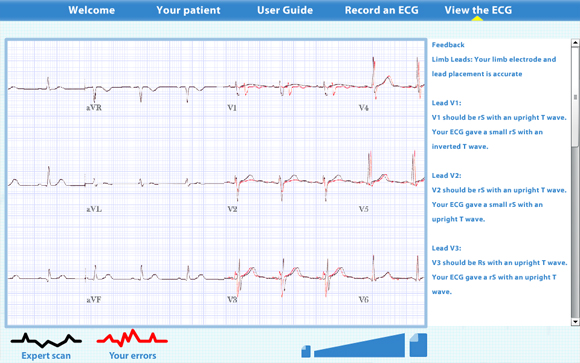 Virtual ECG: Scan result zoomed out