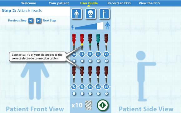 Virtual ECG: User guide